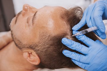 Hair Loss Therapy Monmouth County, NJ