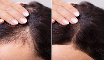 Hair Loss Treatment Central New Jersry