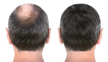 Hair Restoration Central New Jersey