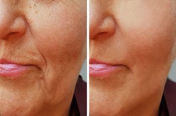 Wrinkle Removal Monmouth County, NJ