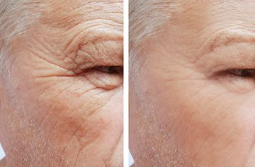 Wrinkle Reduction Central New Jersey, NJ